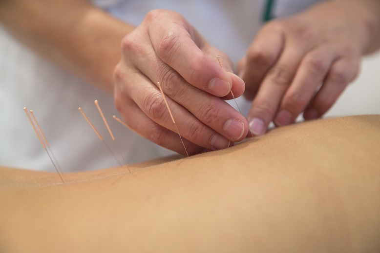 the characteristics of acupuncture a type of alternative medicine Each person who performs acupuncture has a unique style, often blending aspects of eastern and western approaches to medicine to determine the type of acupuncture treatment that will help you the most, your practitioner may ask you about your symptoms, behaviors and lifestyle.