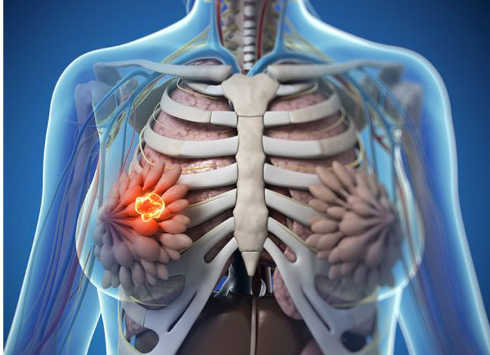 fibrocystic breasts   naturopathic currents, Skeleton