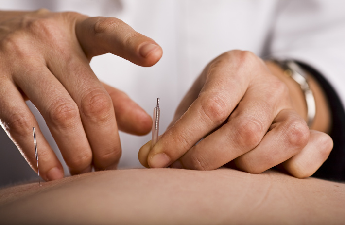 Amyotrophic Lateral Sclerosis - A Needling Approach