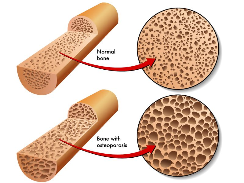 Osteoporosis - Natural Approaches