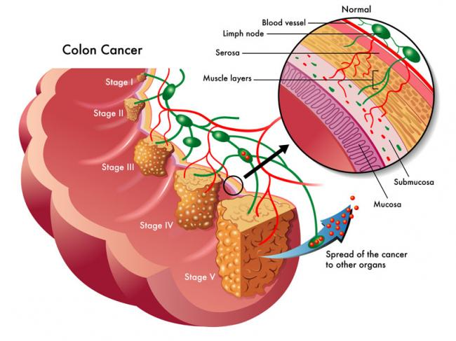 Colorectal Cancer And Mistletoe